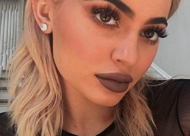 Kylie Jenner assume ses lèvres botoxées