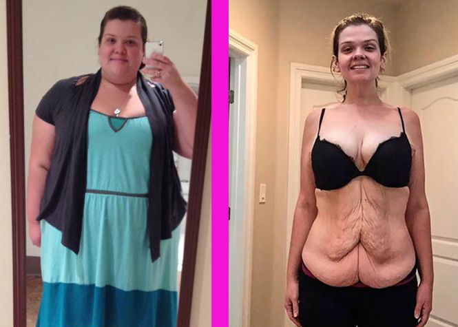 Délestée de 95 kilos et de son mari
