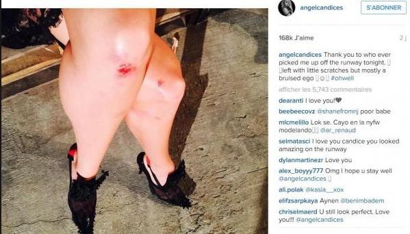 Sur Instagram, elle montre ses genoux abîmés
