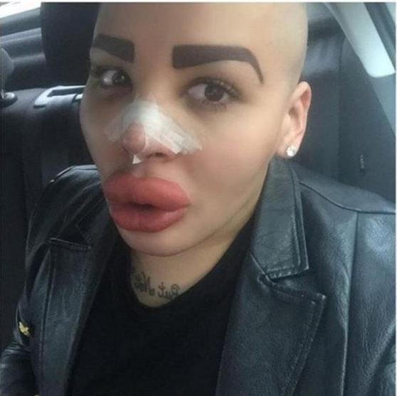 Plus de 50 opérations: il veut ressembler aux soeurs Kardashian