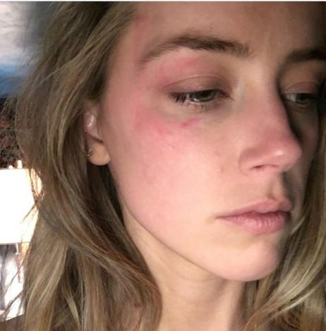 Amber Heard battue par Johnny Depp?