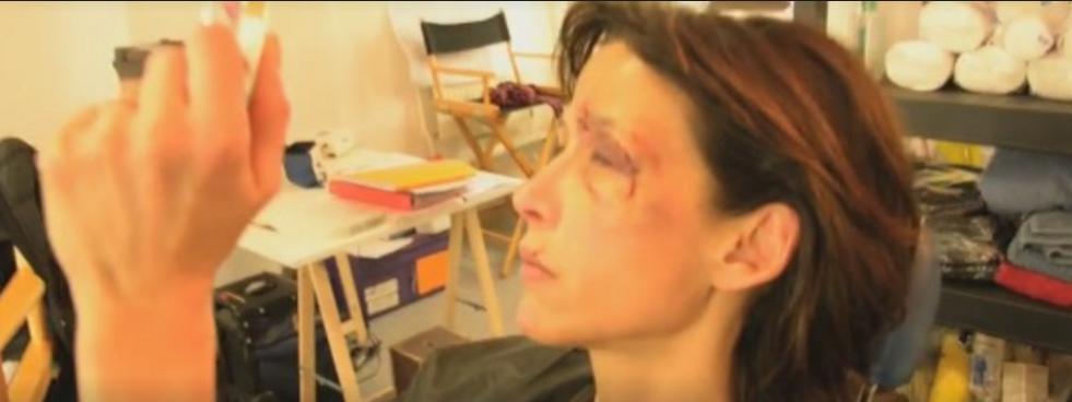 Sophie Marceau le visage tuméfié