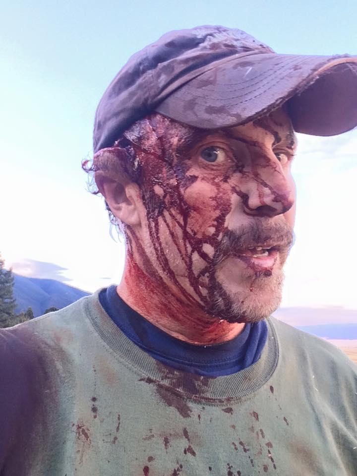Il se filme après avoir été attaqué par un ours (Vidéo choc)