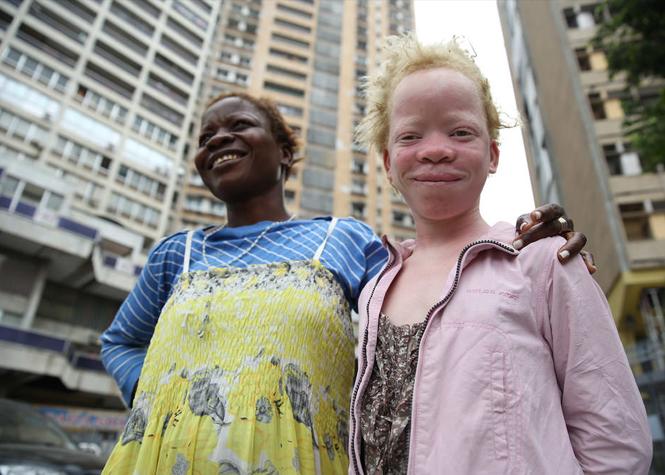 """""""Miss et Mister albinos"""" au Kenya"""