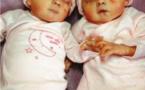 La sordide annonce des jumeaux battus ou décédés