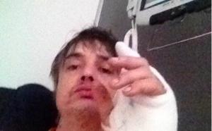 Peter Doherty, future guest star du Sakifo, blessé